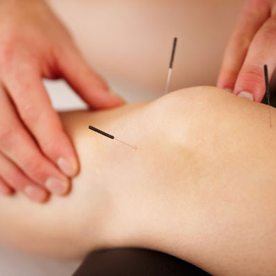 Intramuscular Stimulation (IMS) Dry Needling